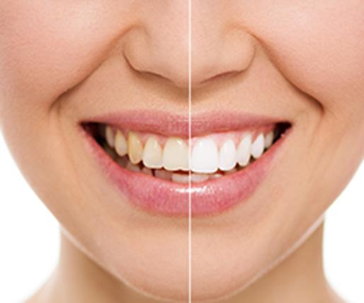 Blanqueamiento Dental Elche - Gustavo Garcia del Rio