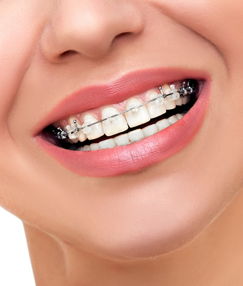 Ortodoncistas Elche - Gustavo Garcia del Rio