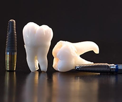 Gustavo Garcia del Rio - Implantes Dentales