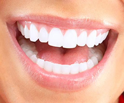 Gustavo Garcia del Rio - Limpieza Dental