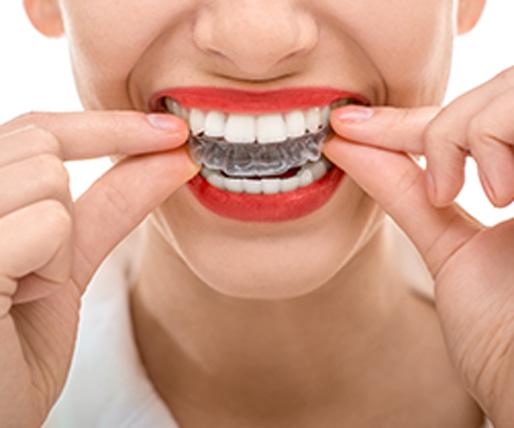 Gustavo Garcia del Rio - Ortodoncia y ortodoncia invisible