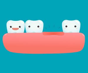 Los dientes de leche y los dientes definitivos