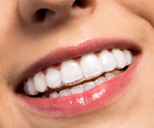Ortodoncia invisible - Clínica dental Gustavo García del Río