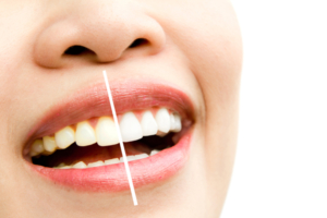 Blanqueamiento dental, todo lo que necesitas saber