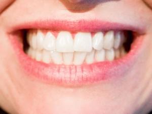 6 cosas que probablemente no sepas acerca de tus dientes