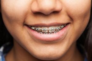 8 Beneficios de la ortodoncia