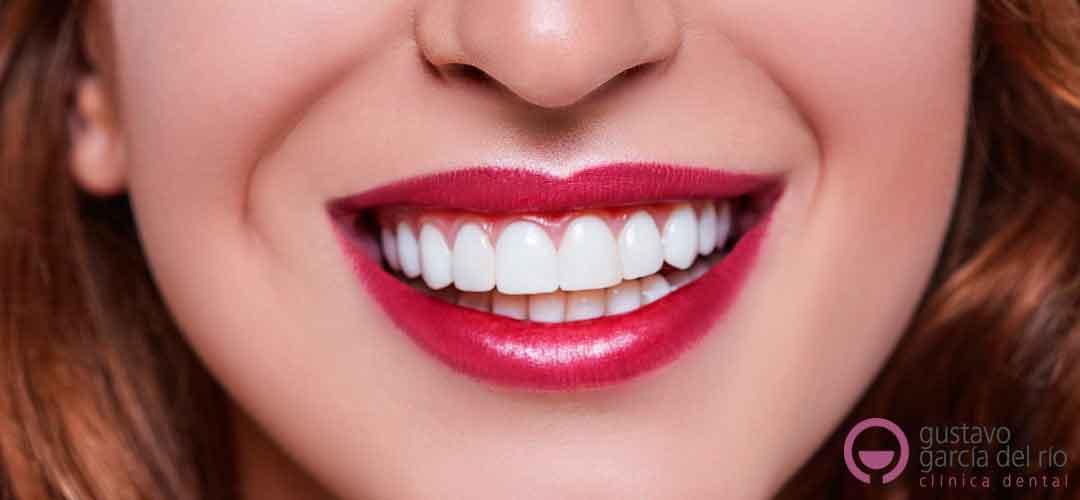 carillas-dentales-elche